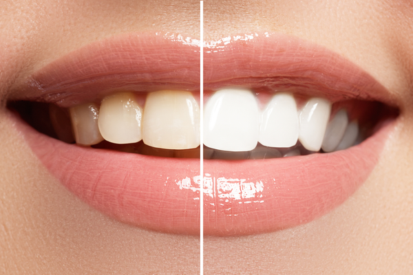 Teeth whitening in St. Augustine, FL