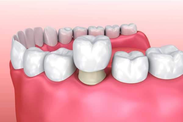 Reconstructive Dentistry | Dental Remedies