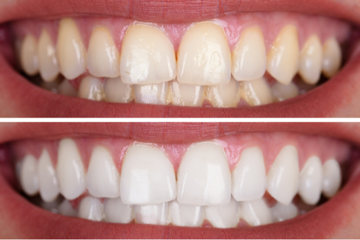 WHAT SHOULD I DO TO MAKE MY TEETH WHITER?   Dental Remedies