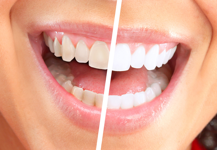 Is Cosmetic Dentistry Worth the Investment?   Dental Remedies